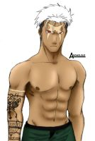 Scar of FMA by anomolous