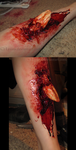 Compound Fracture by PlaceboFX