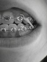 Anatomy of Braces by Adrienneknott