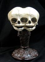 Conjoined Twins Fetal Skull Display by DellamorteCo