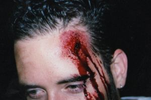 "close-up ""Jared's"" head wound by bathory-babe"
