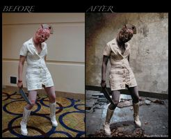 Before-After: SH Nurse by Dana-Weise