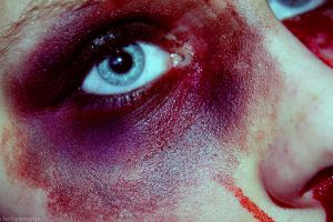 bloody and bruised by chelsea-martin