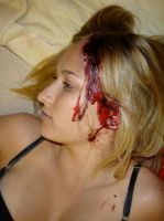 close-up of annie's head wound by bathory-babe