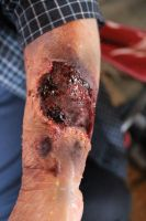 Nasty Arm Gash by Anesthetic-X