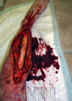 Exposed Tibia 2 by PlaceboFX