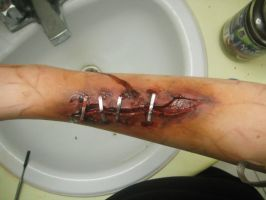 infected staples by itashleys-makeup
